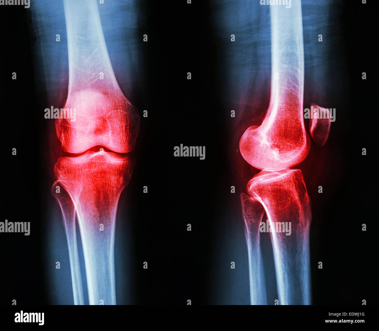 Film x-ray knee AP/lateral : Osteoarthritis knee (Inflammation at knee) - Stock Image