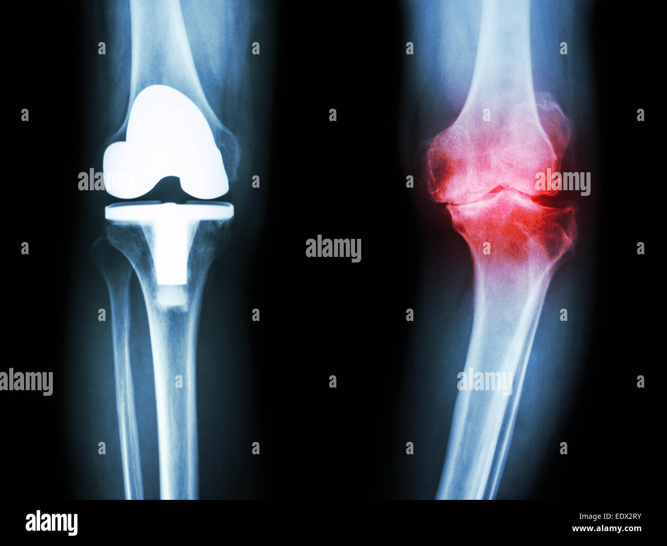 film x-ray knee of osteoarthritis knee patient and artificial joint - Stock Image
