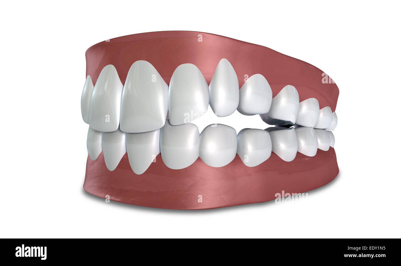 Seperated Upper And Lower Sets Of Human Teeth Set In Gums On An