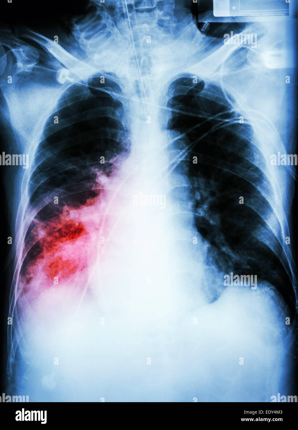 'Pneumonia with respiratory failure'  film chest x-ray of patient with endotracheal tube,catheter. he was - Stock Image