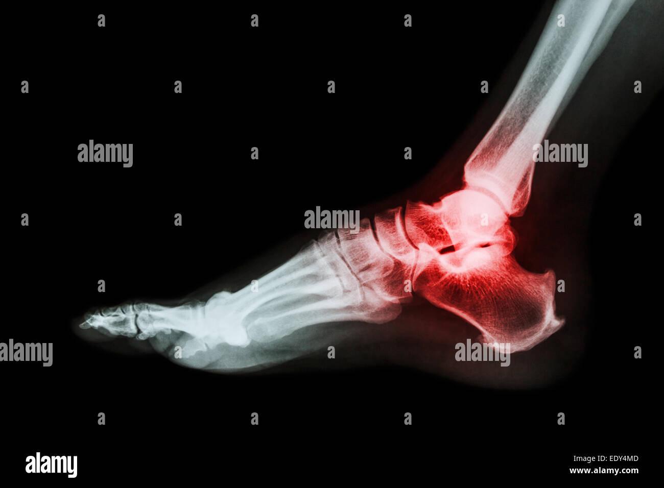 Arthritis at ankle joint (Gout , Rheumatoid arthritis) - Stock Image
