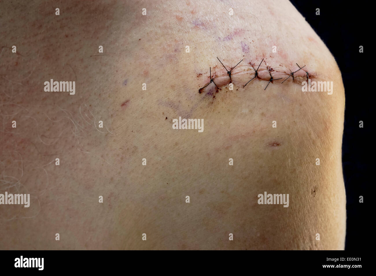 Surgical incision wound from rotator cuff shoulder surgery-Victoria, British Columbia, Canada. Note-Digital composite - Stock Image