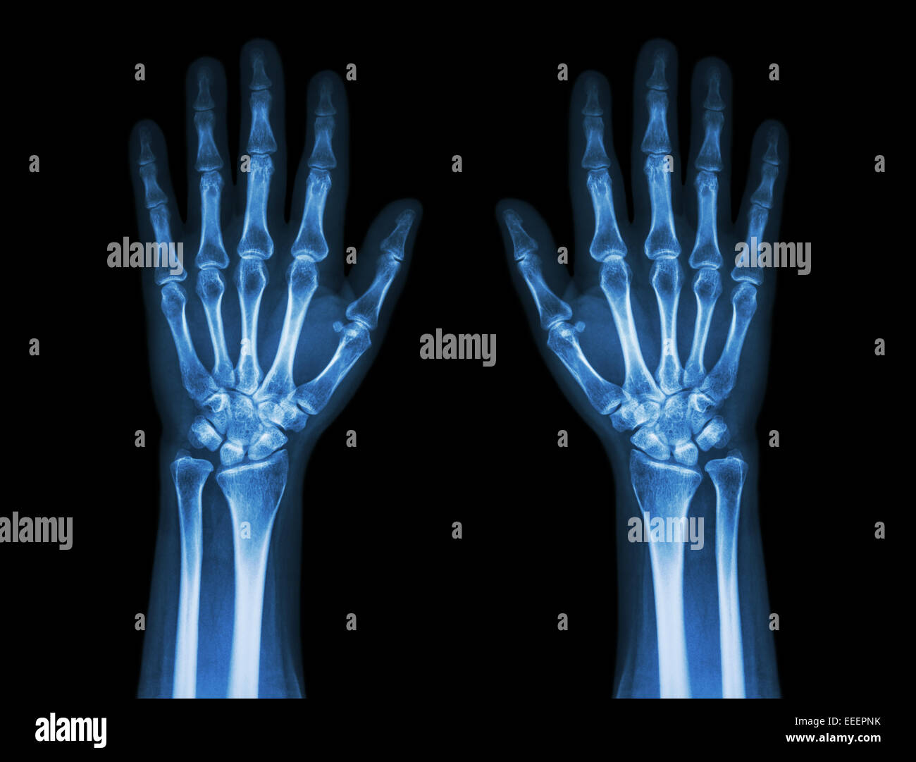 Human Wrist Anatomy Xray View Stock Photos & Human Wrist Anatomy ...