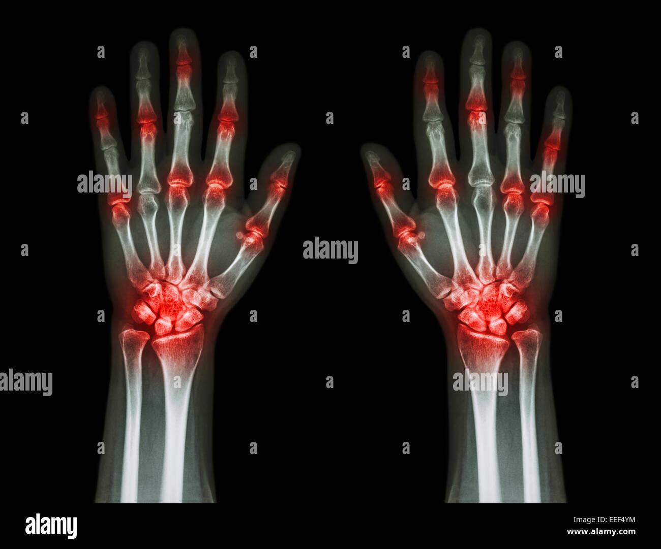 multiple joint arthritis both hands ( Gout , Rheumatoid ) on black background - Stock Image