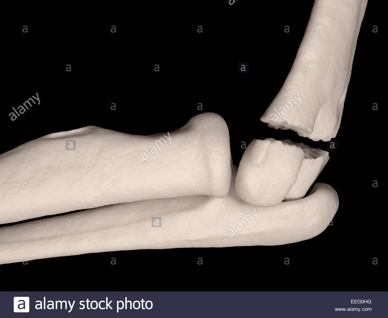 Upper Arm Bone Stock Photos Upper Arm Bone Stock Images Alamy