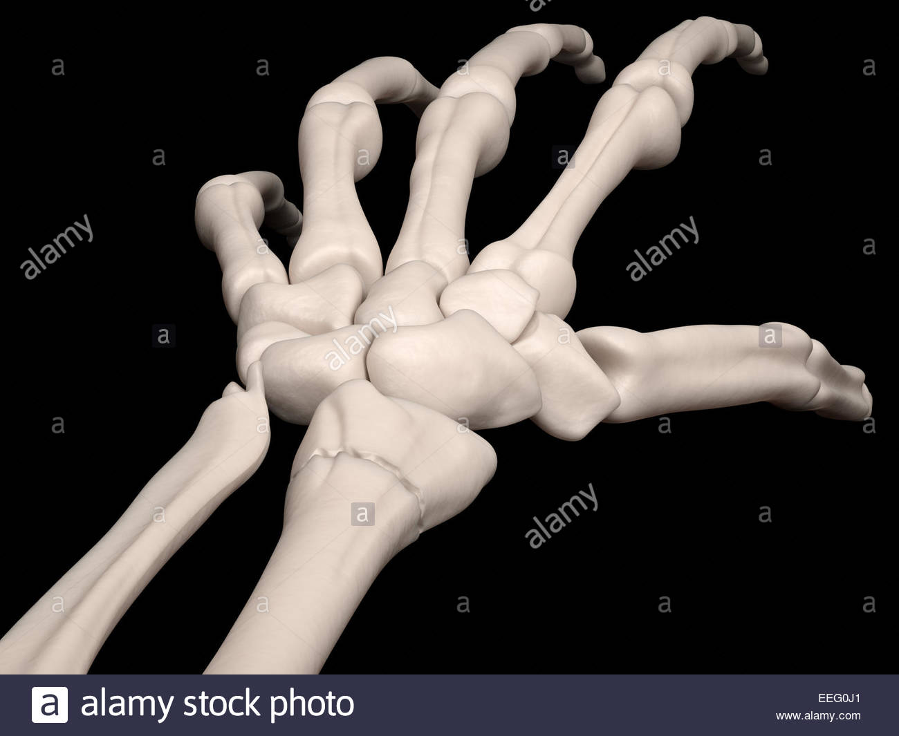 Digital medical illustration depicting an extra-articular, nondisplaced distal radius fracture. - Stock Image