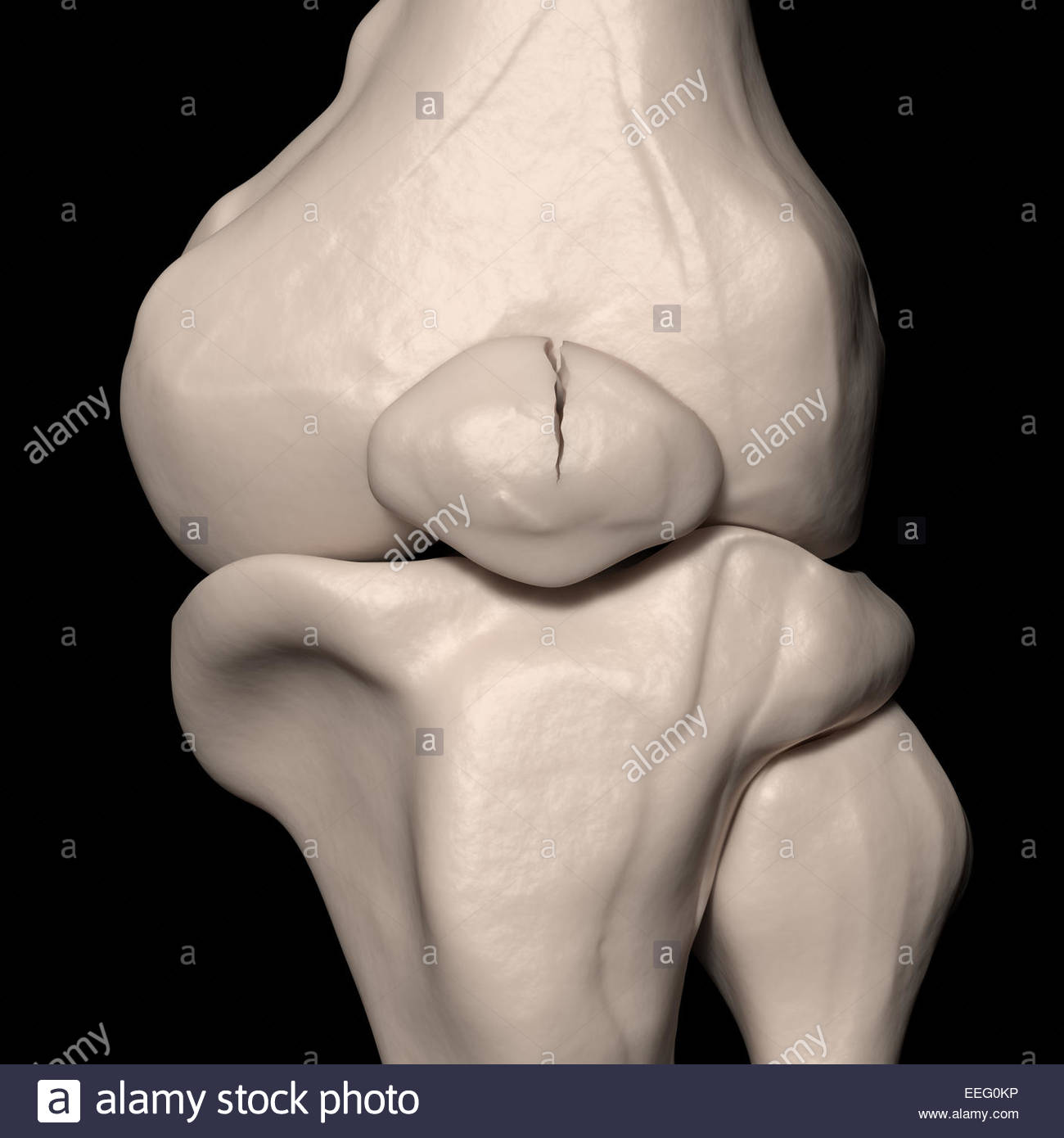 Digital medical illustration depicting a vertical patellar fracture. Anterior (front) view. Stock Photo