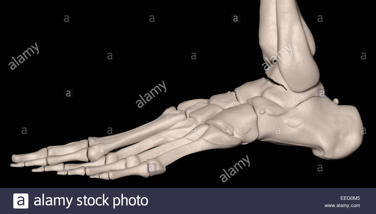 Digital medical illustration depicting a talus fracture. Lateral (side) view. - Stock Image