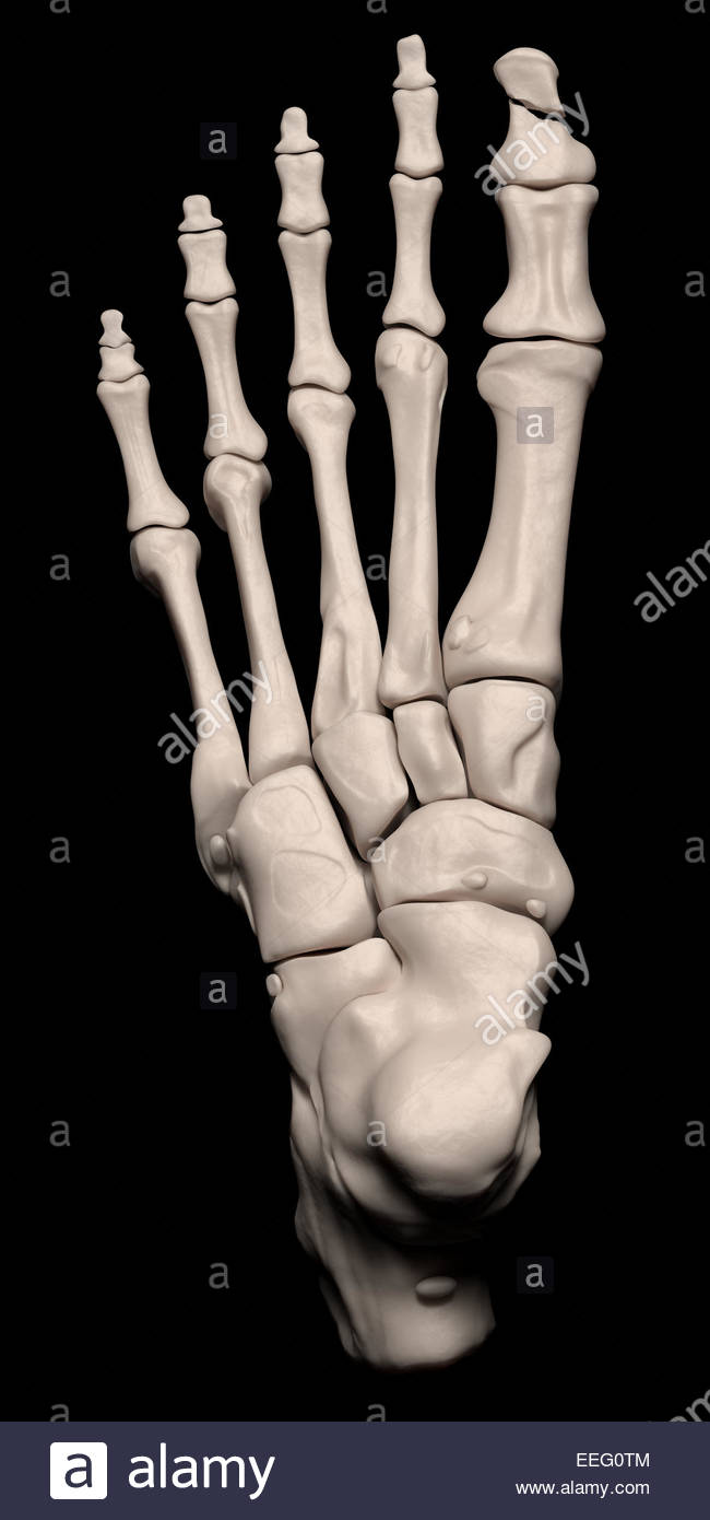 Metatarsal Fracture Stock Photos & Metatarsal Fracture Stock Images ...