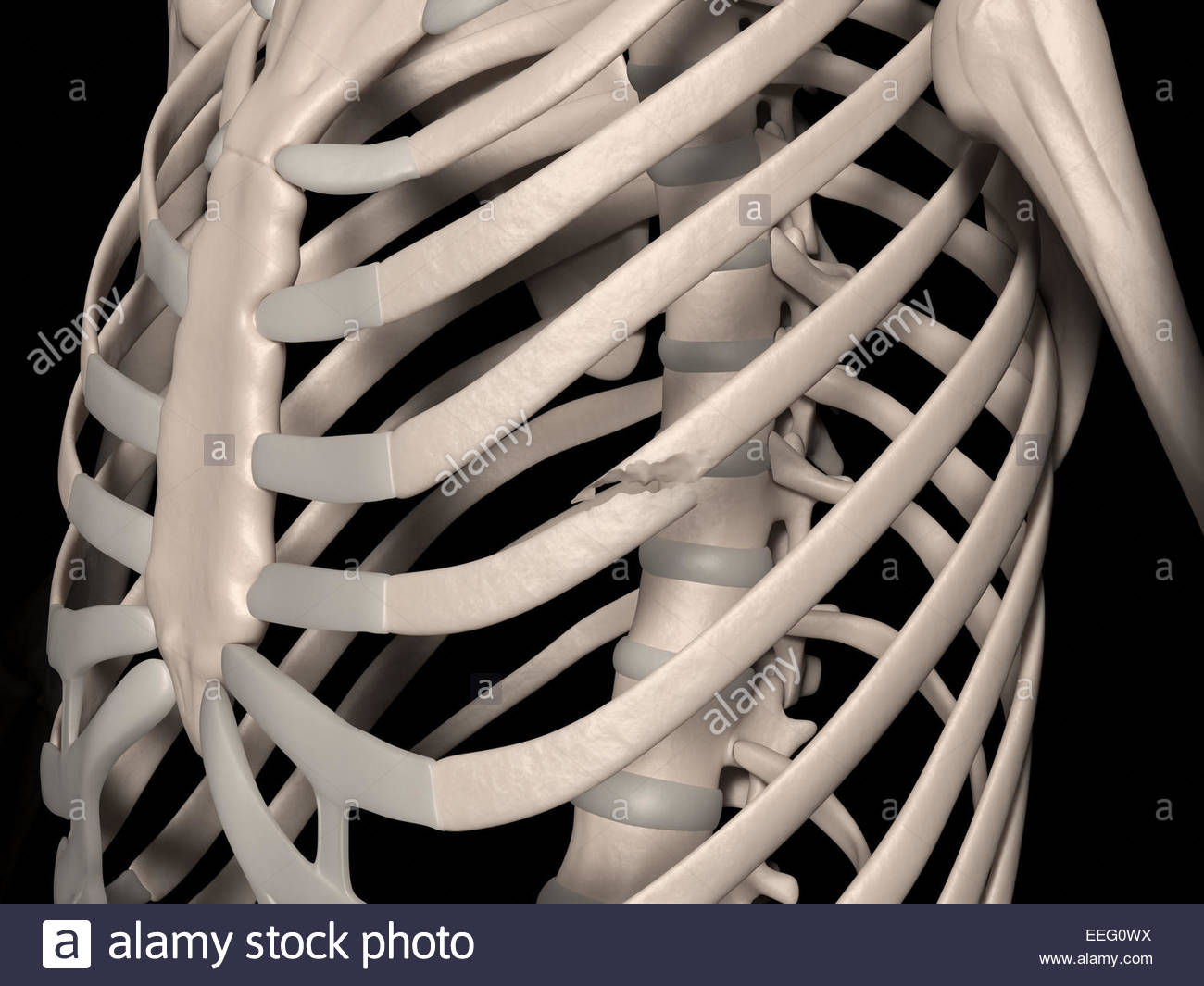 Digital medical illustration depicting a fracture of 5th rib (true rib, vertebrosternal rib, costa vera). Front - Stock Image