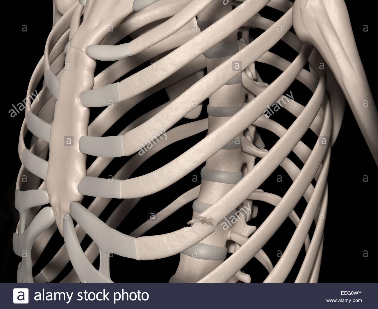Digital medical illustration depicting a fracture of 6th rib (true rib, vertebrosternal rib, costa vera). Front - Stock Image