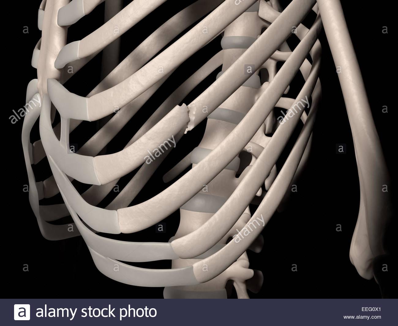 Digital medical illustration depicting a fracture of 7th rib (true rib, vertebrosternal rib, costa vera). Front - Stock Image