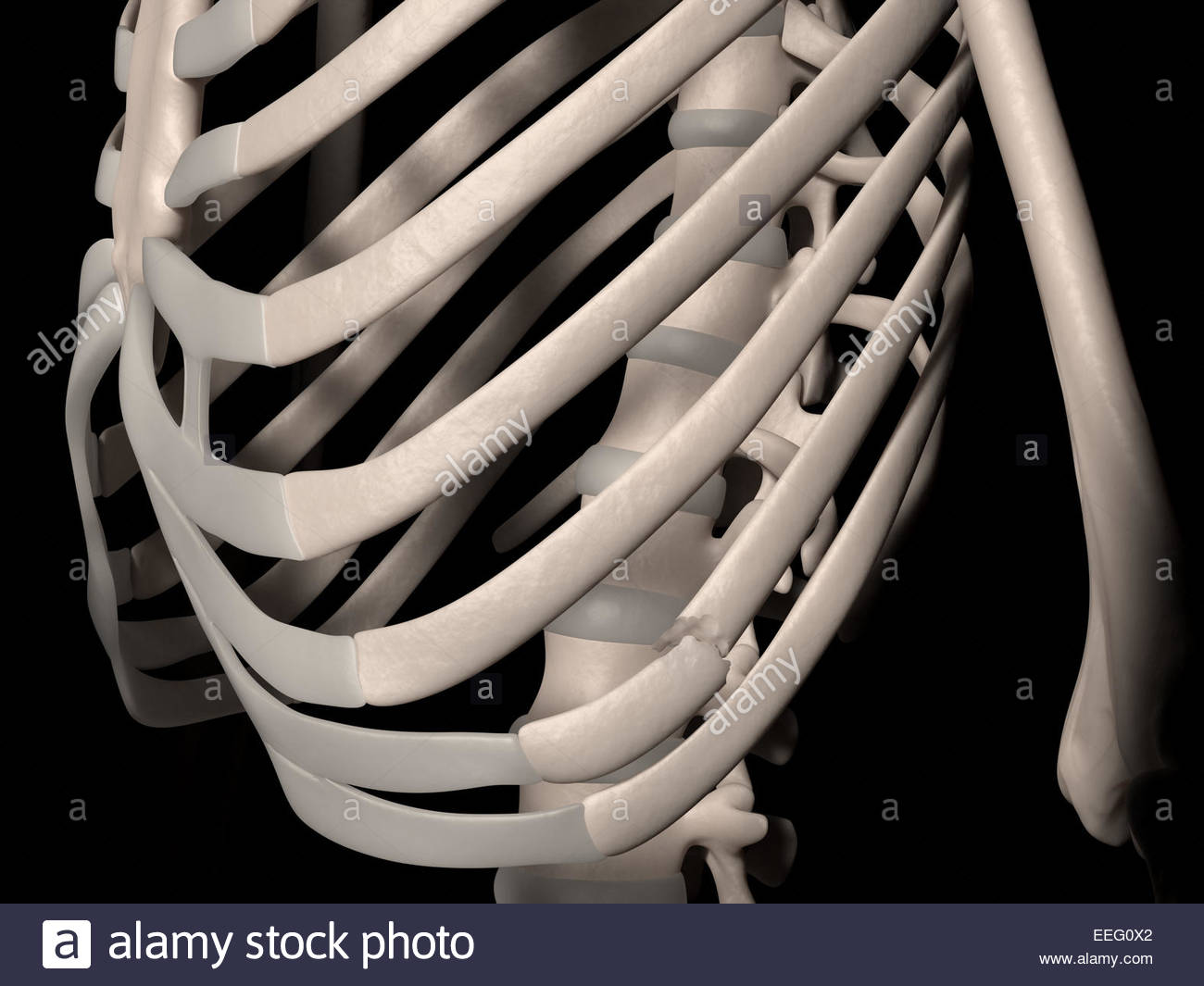 Digital medical illustration depicting a fracture of 9th rib (false rib, costa spuria). Front perspective view. - Stock Image