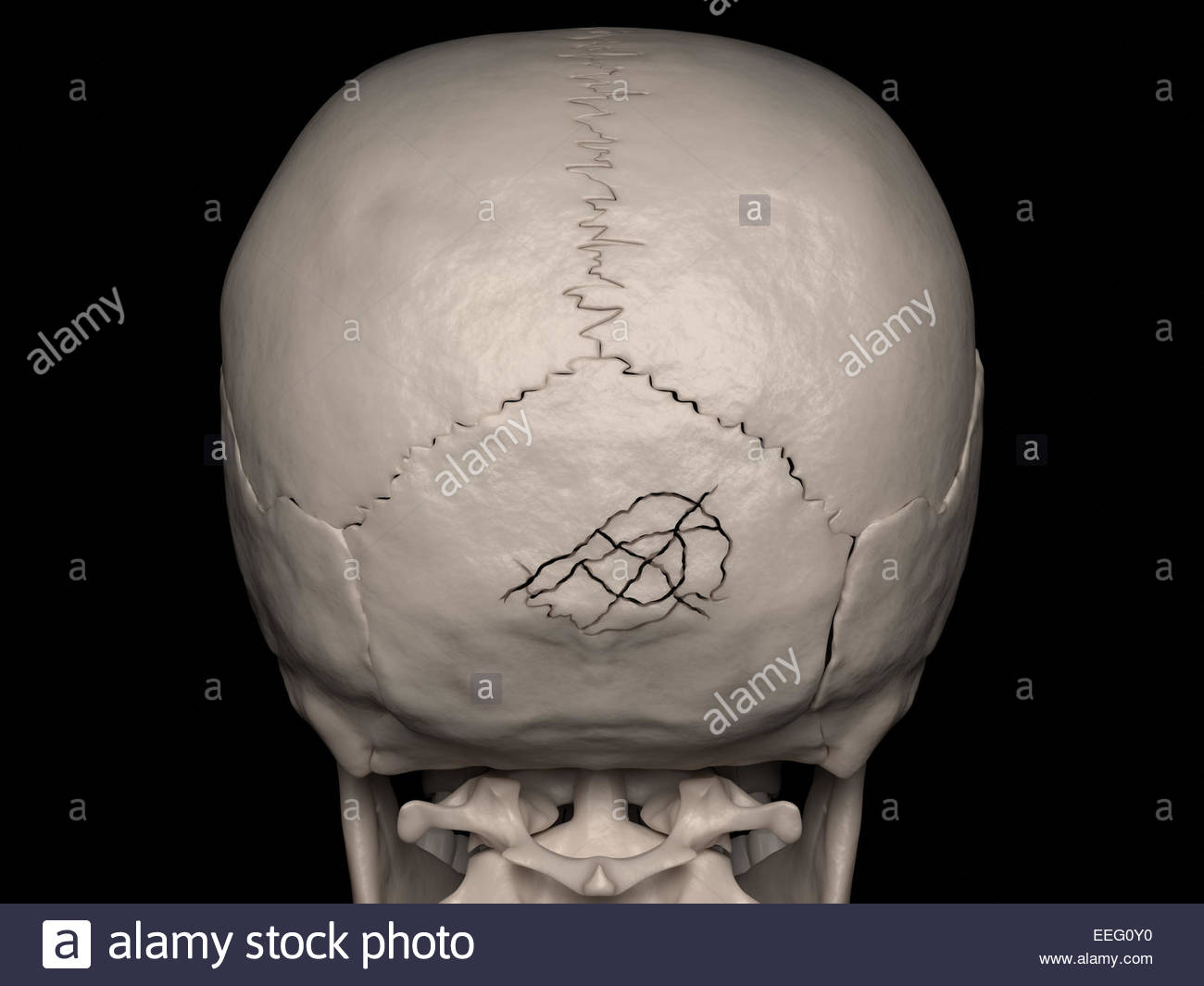 Digital medical illustration depicting a comminuted cranial vault fracture of the occipital bone (skull fracture). - Stock Image