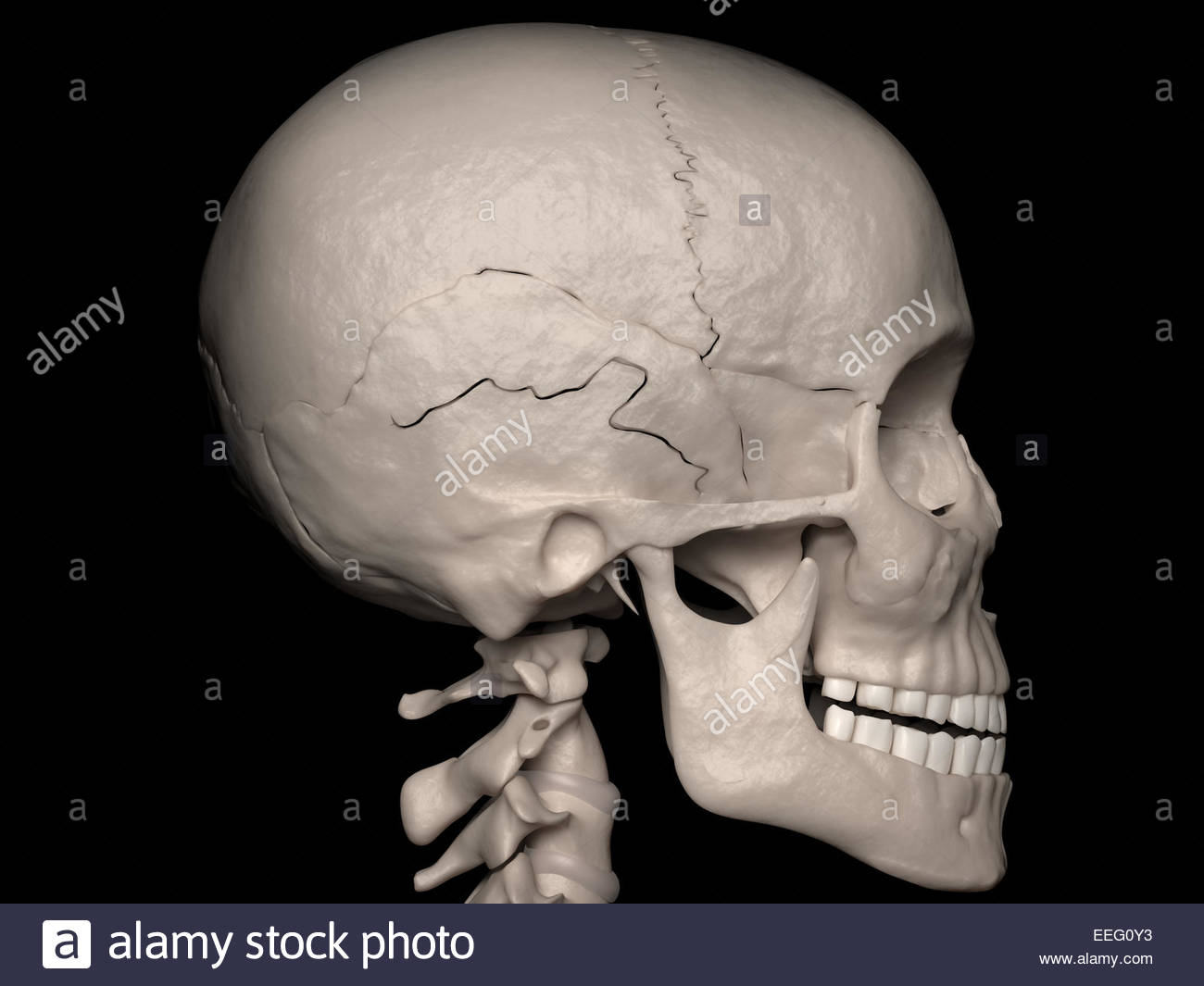 Digital medical illustration depicting a linear cranial vault fracture of the temporal bone (skull fracture). Lateral - Stock Image