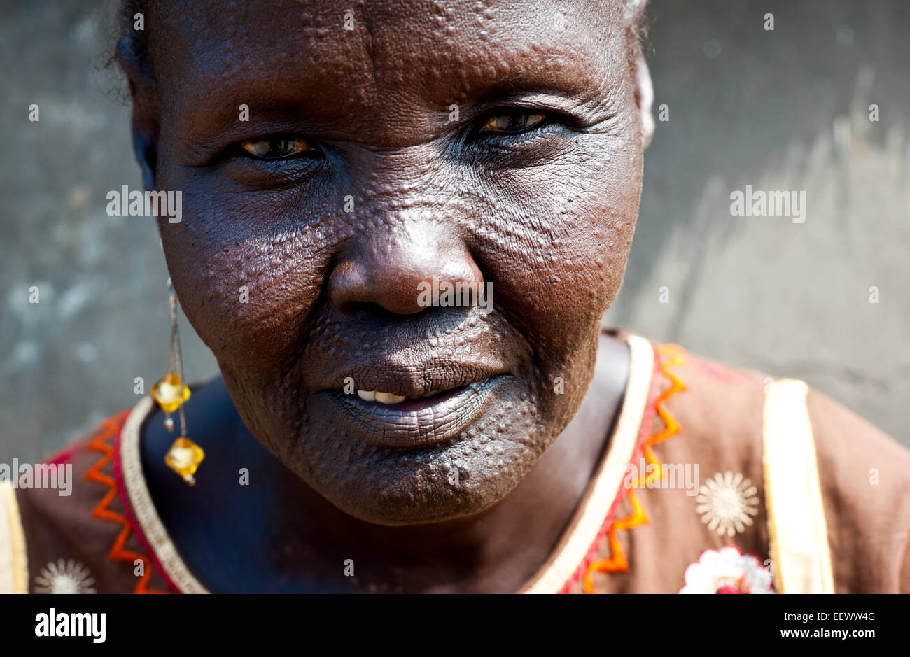 Woman belonging to the Nuer tribe with facial markings on the head. She is a refugee from South Sudan ( Ethiopia) - Stock Image