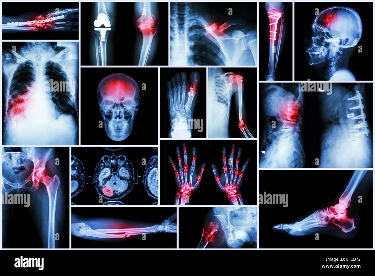 Collection X-ray multiple disease (stroke ,fracture ,osteoarthritis ,pneumonia ,tuberculosis ,spondylosis ,spondylolisthesis - Stock Image