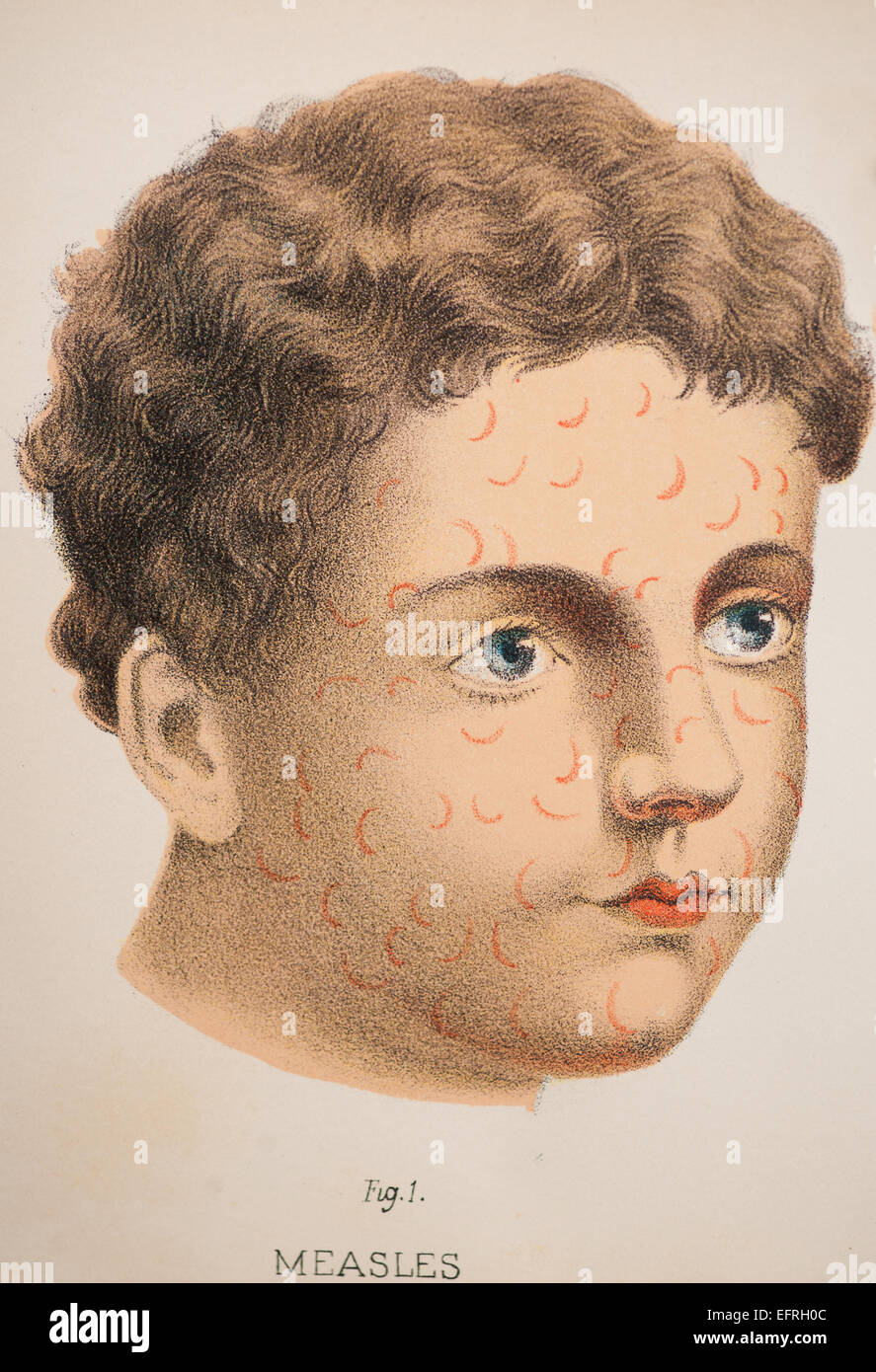 Child with measles, circa 1912. - Stock Image