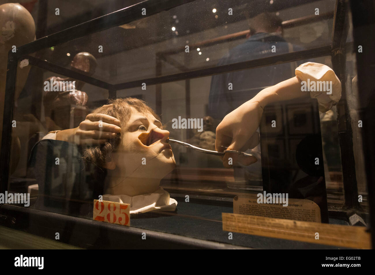 London, UK. 11 February 2015. Pictured: medical models collected by Damien Hirst. The exhibition 'Magnificent - Stock Image