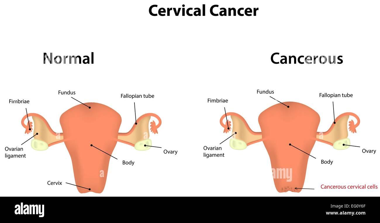 Cervical cancer stock vector art illustration vector image cervical cancer stock vector ccuart Choice Image