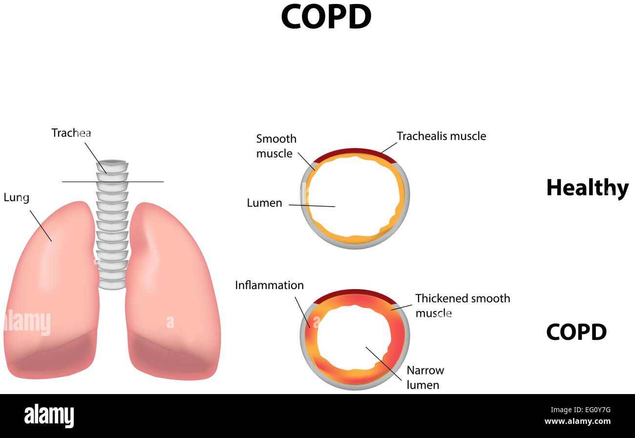 what is chronic obstructive pulmonary disease pdf