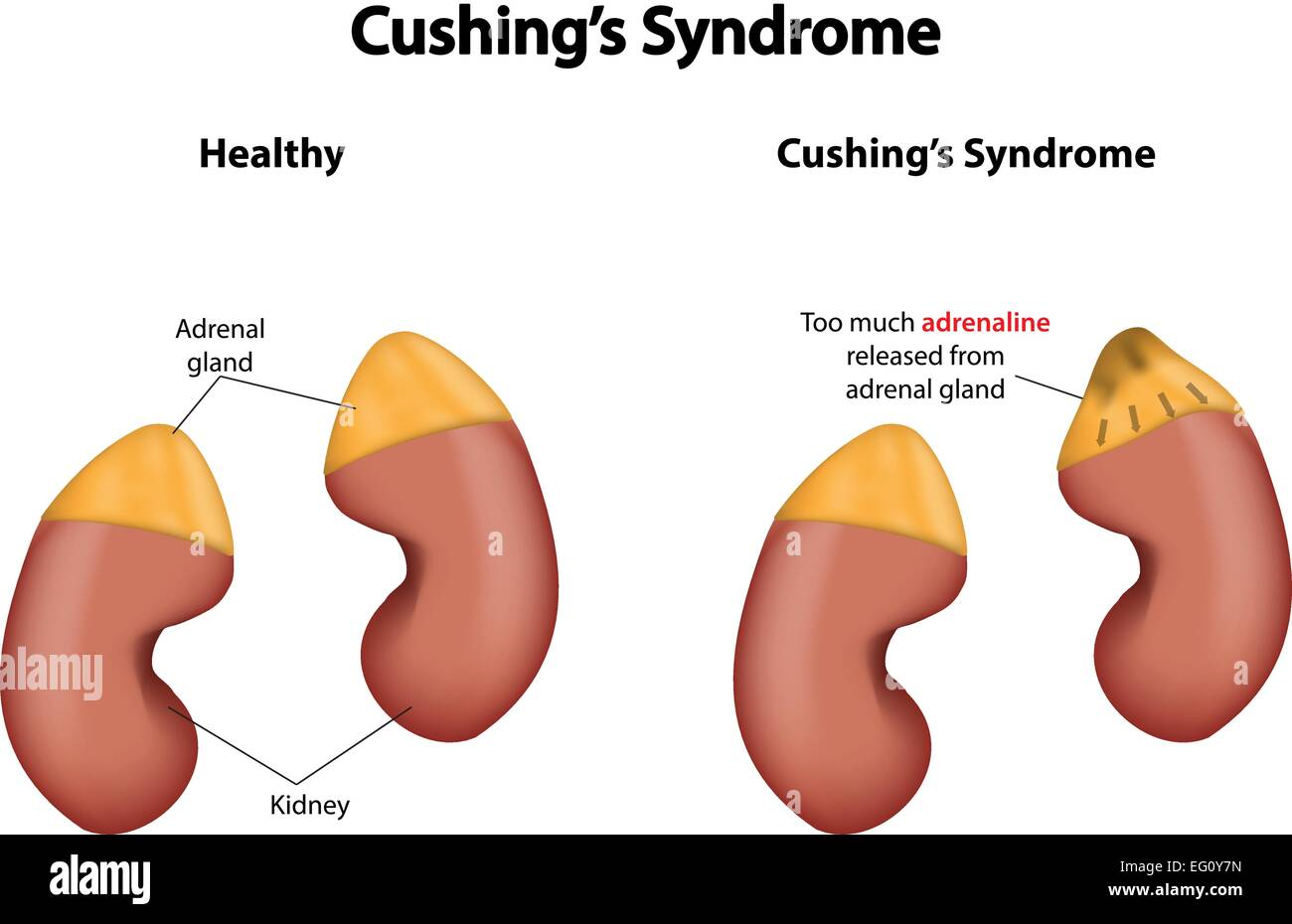cushings disease Cushing's disease is a naturally occurring syndrome, but it can also be caused by administering excessive amounts of prednisone or dexamethasone for prolonged periods.