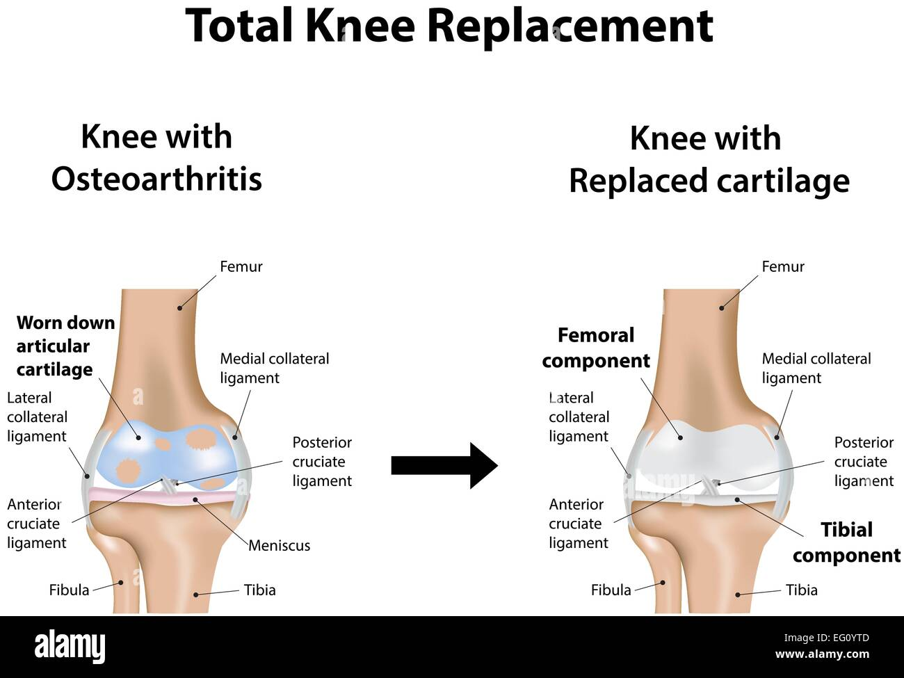 Total Knee Replacement - Stock Image