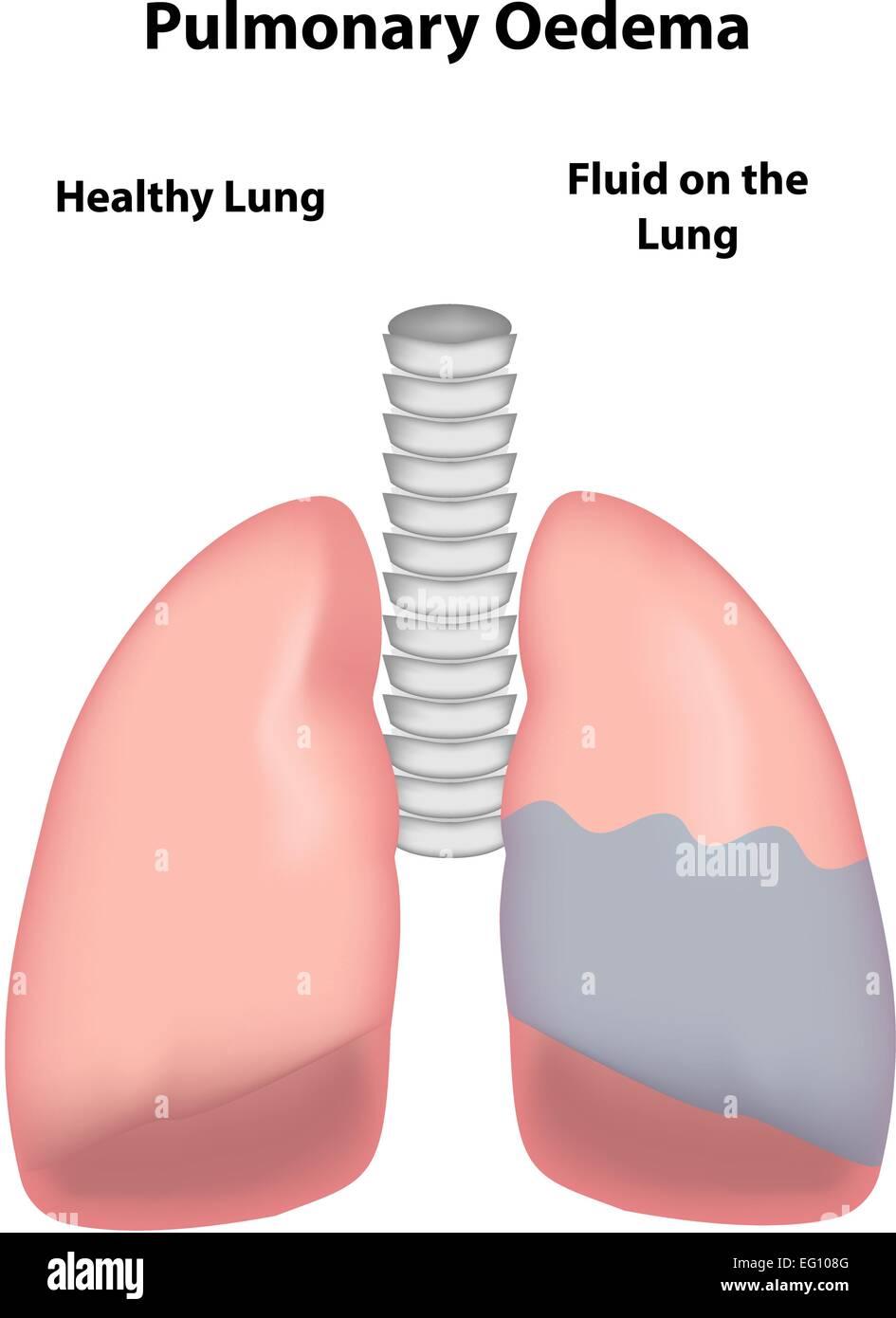 Pulmonary Oedema - Stock Image