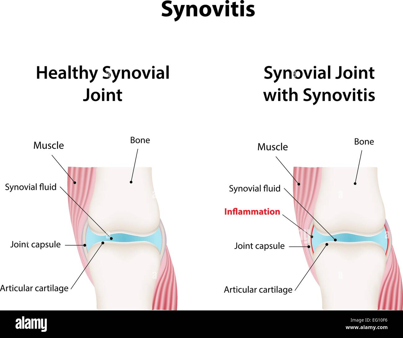 Synovial Joint Stock Photos Synovial Joint Stock Images Alamy
