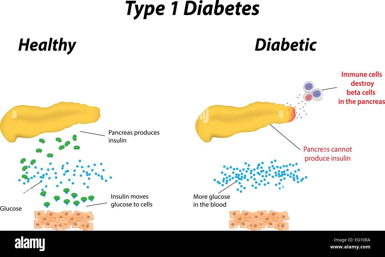 Type 1 Diabetes - Stock Image