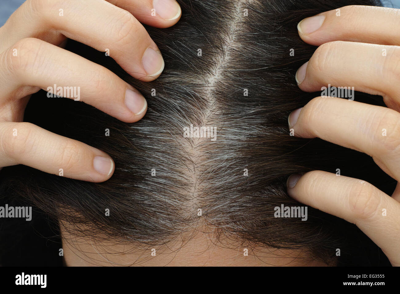Hair Roots Stock Photos & Hair Roots Stock Images - Alamy