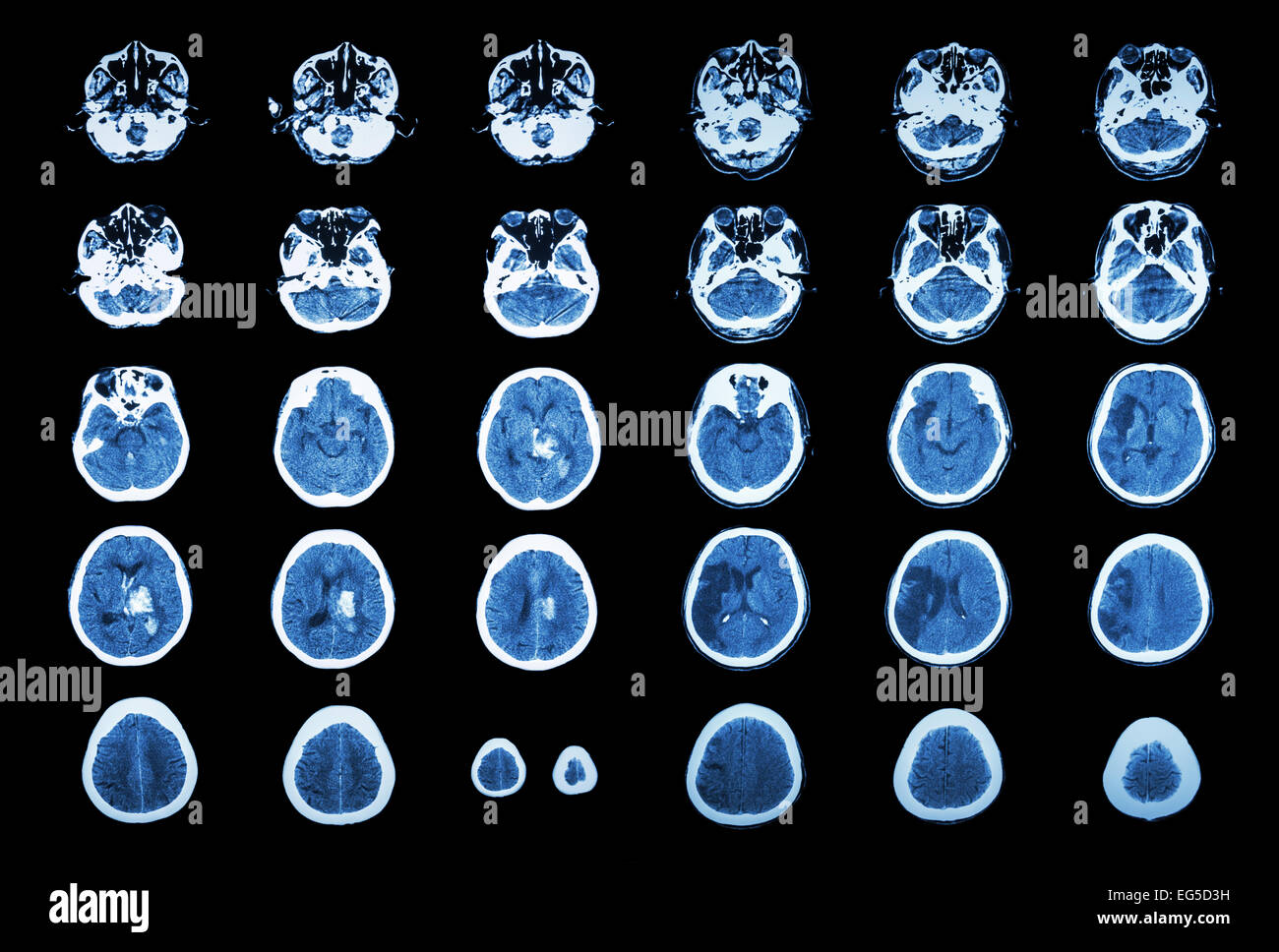 Hemorrhagic Stroke and Ischemic Stroke .  CT scan of brain : intracerebral hemorrhage ( 3 left column ), cerebral - Stock Image
