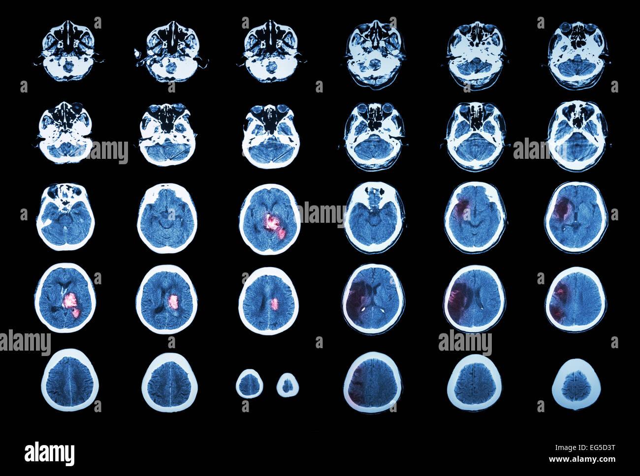 Hemorrhagic Stroke and Ischemic Stroke .  CT scan of brain : intracerebral hemorrhage ( 3 left column , cerebral - Stock Image