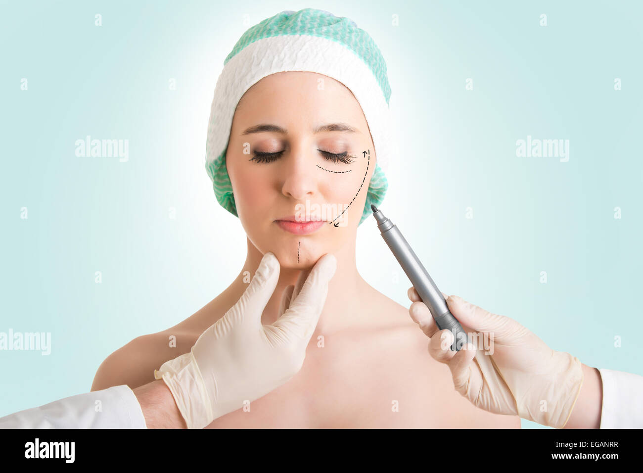 Woman ready for cosmetic surgery with marks drawn on her face isolated in green - Stock Image