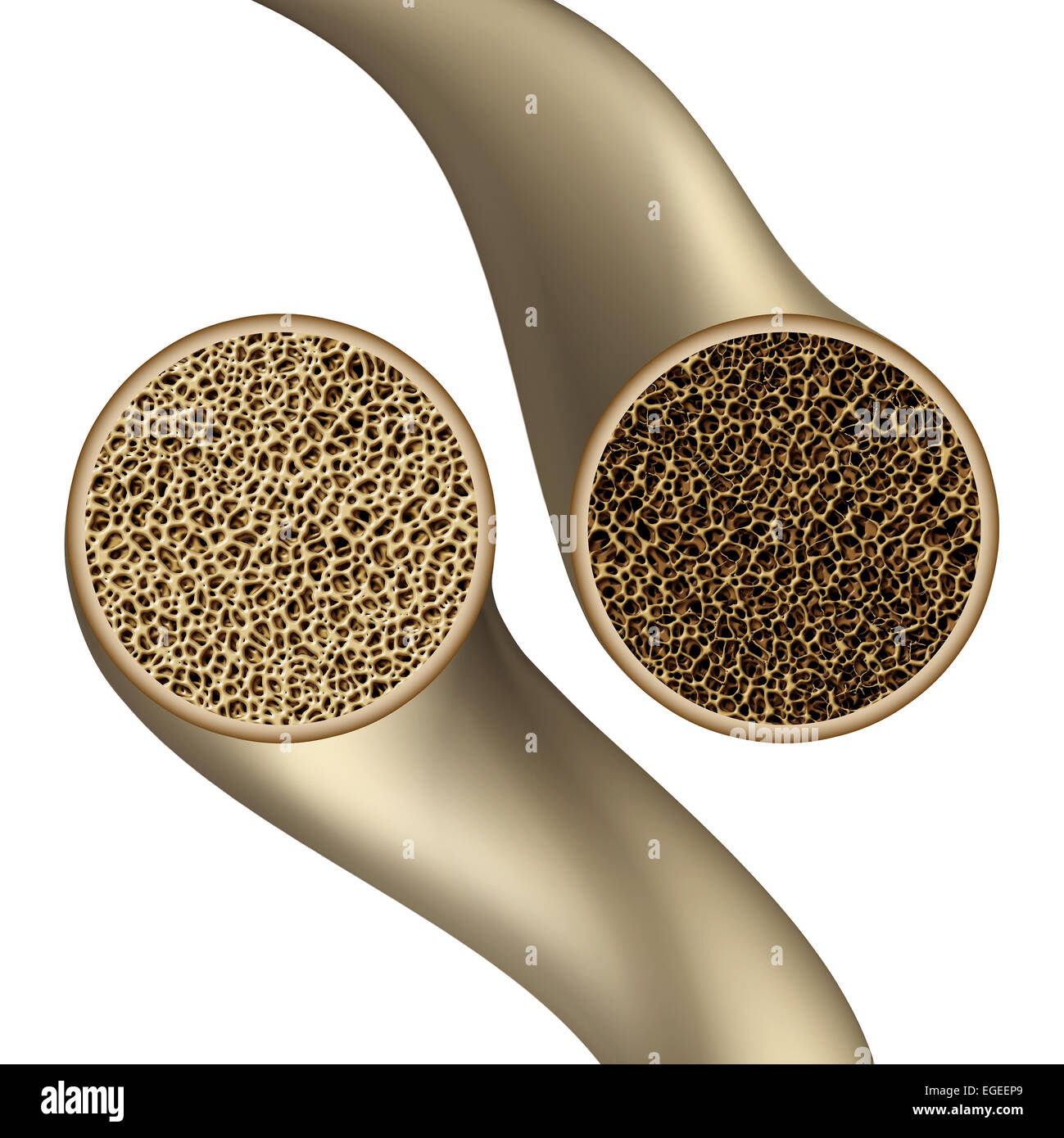 Bone health symbol as an osteoporosis medical illustration concept showing a close up comparison of human skeletal - Stock Image