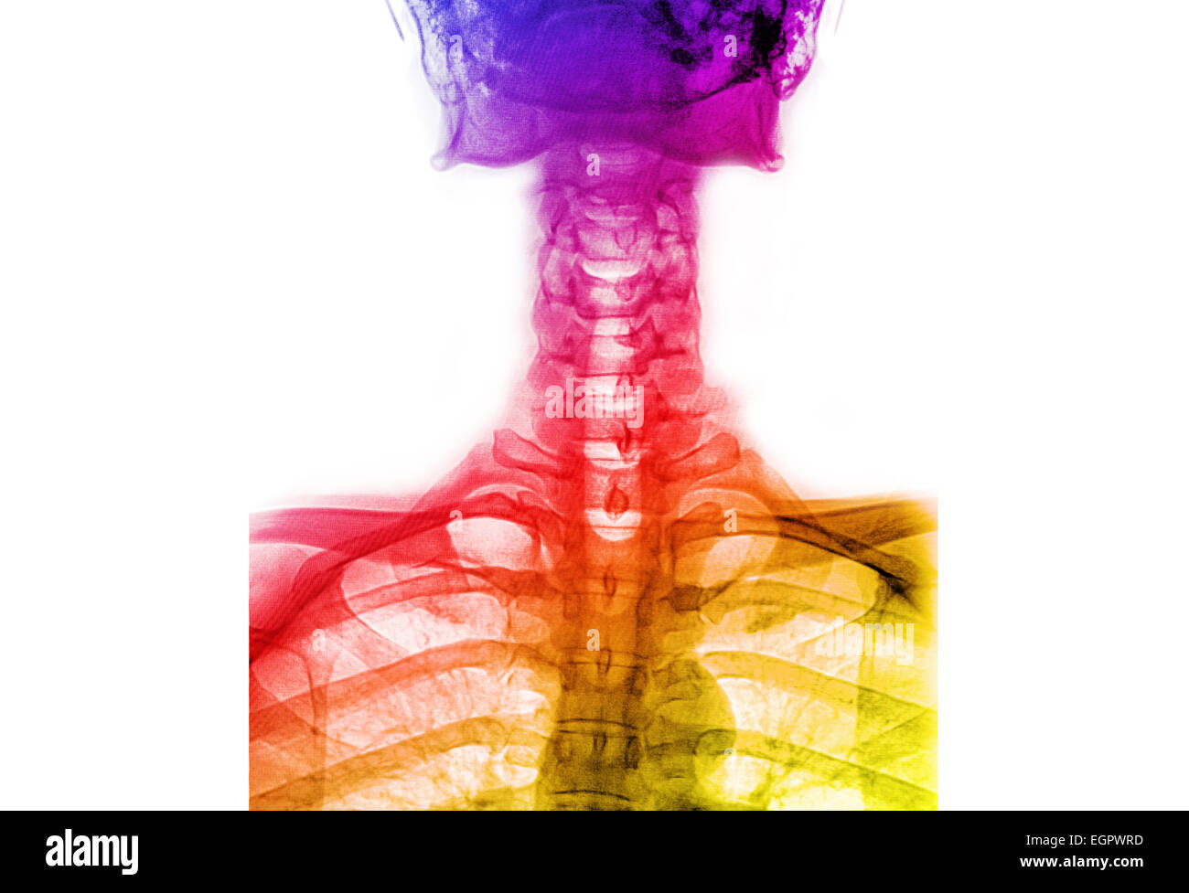 Colorful X Ray T L Spinethoracic Lumbar Spine Stock Photo 79179169