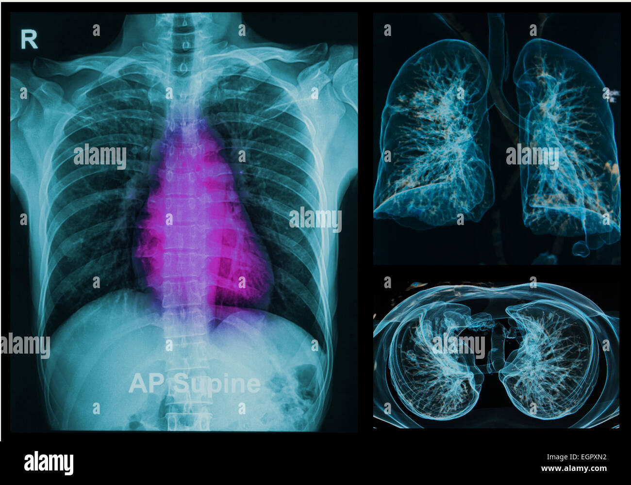 Chest X-rays under 3d image ,lungs 3d image - Stock Image