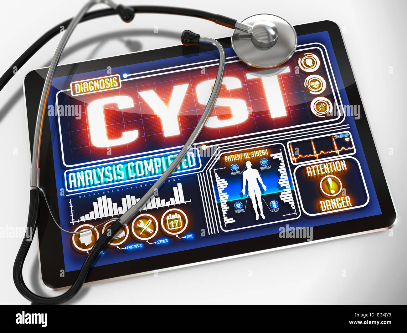 Cyst on the Display of Medical Tablet. Stock Photo
