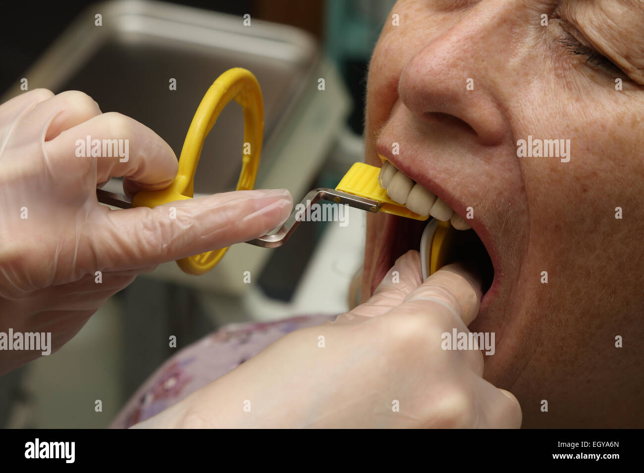 Woman at dentist having x-ray - model released - Stock Image