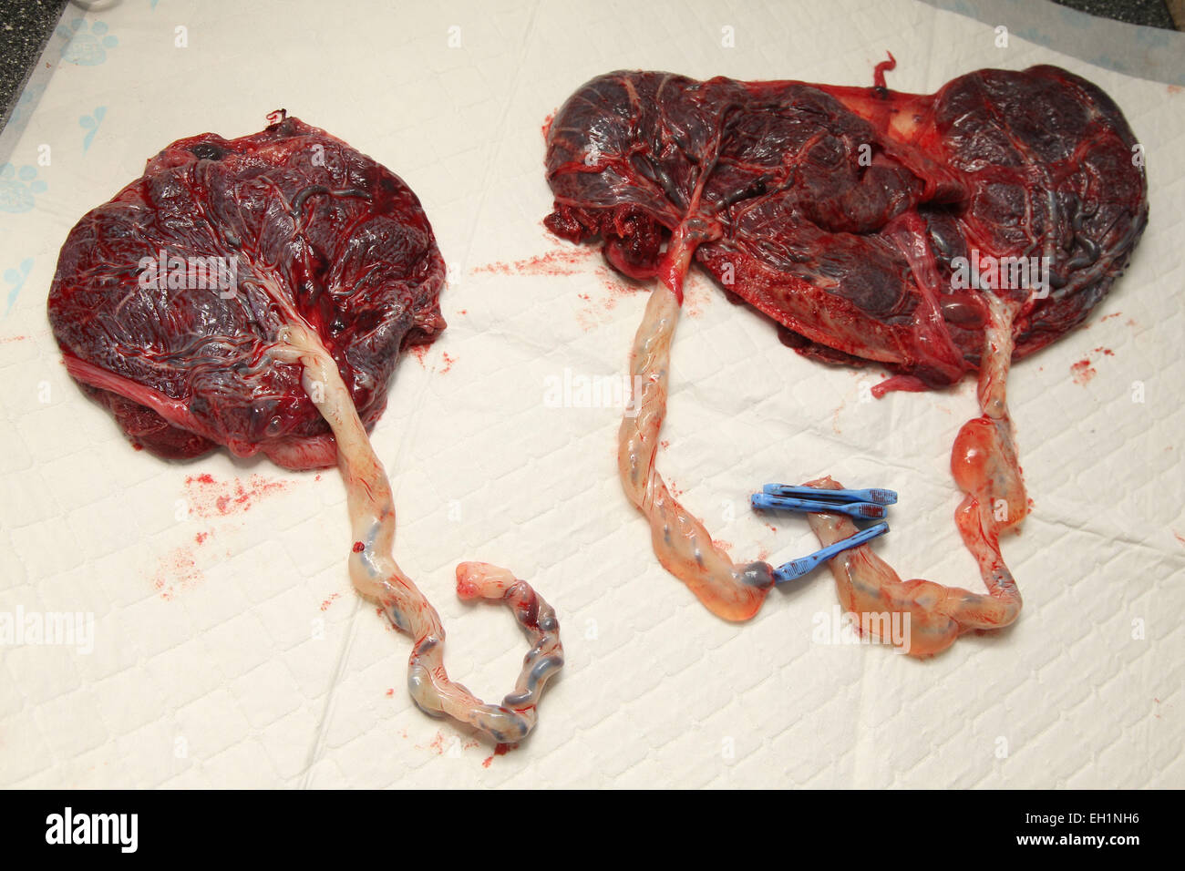 Placentas from triplets - one on right is from identical twins - about to be made into smoothie for mother to drink, - Stock Image