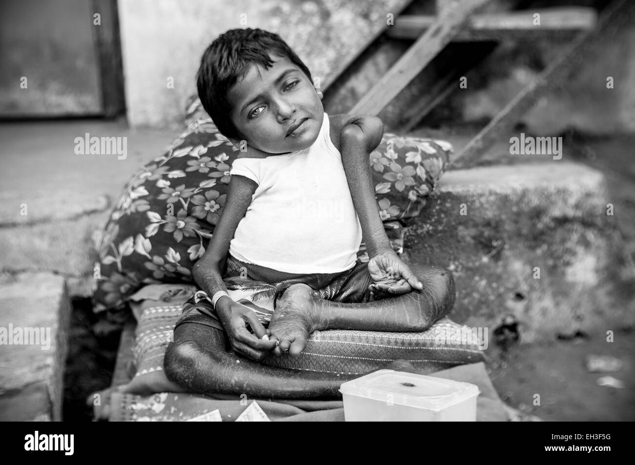 A small homeless girl, severely disabled, begging for money in rural India. - Stock Image