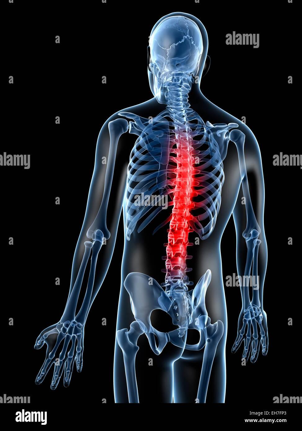 Human Thoracic Spine Pain Stock Photos & Human Thoracic Spine Pain ...