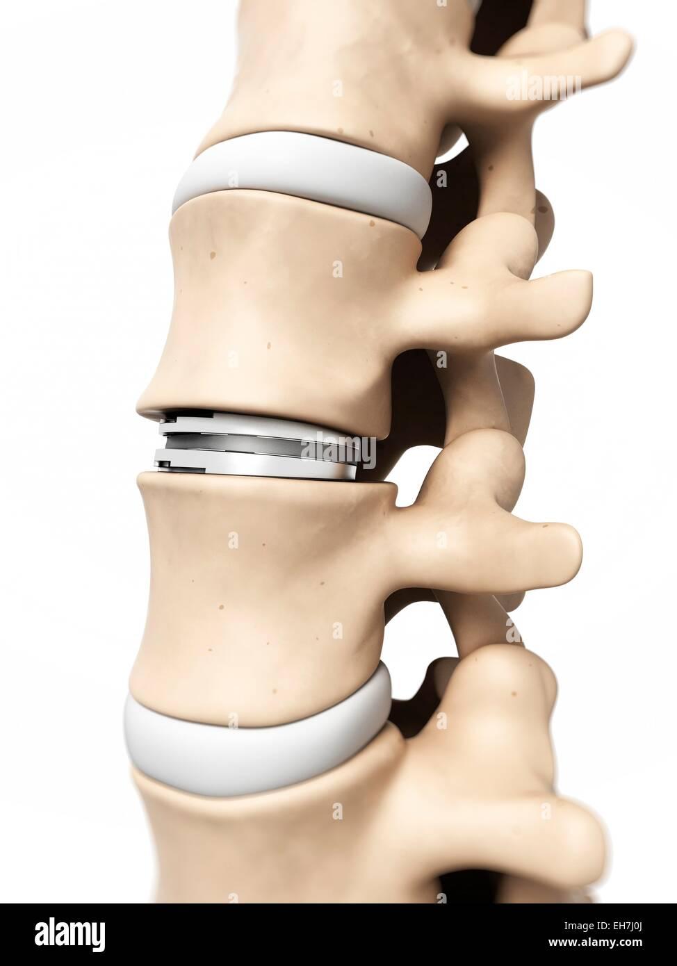 Human vertebrae, illustration - Stock Image