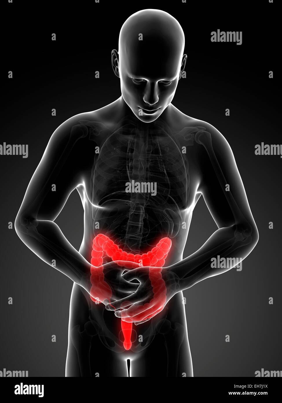 Human large intestine pain illustration stock photo 79458454 alamy human large intestine pain illustration ccuart Choice Image