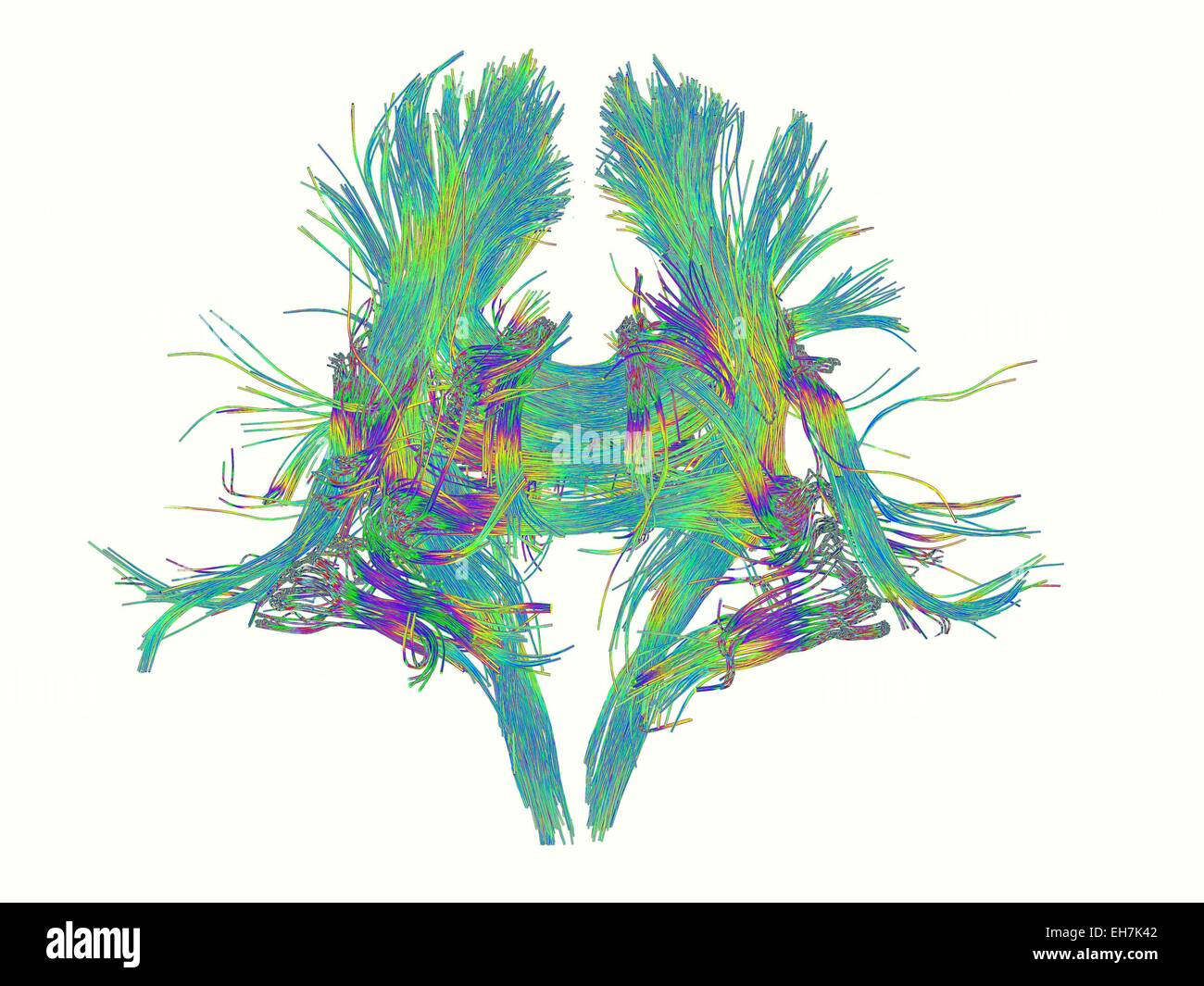 White matter fibres of the human brain - Stock Image