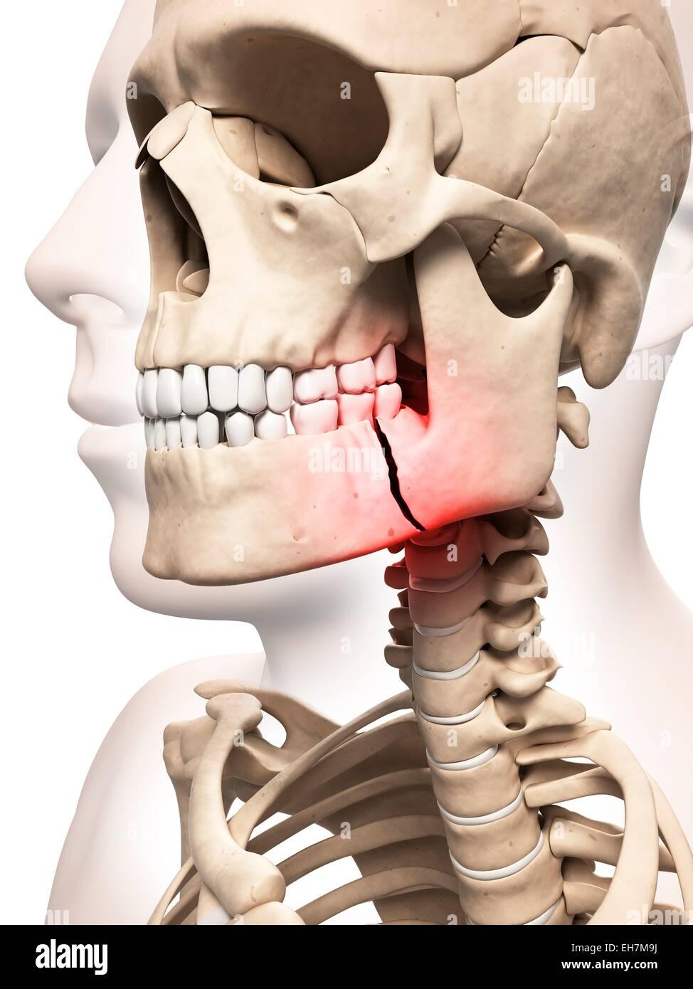 Broken Jaw Bone Illustration Stock Photo 79460238 Alamy