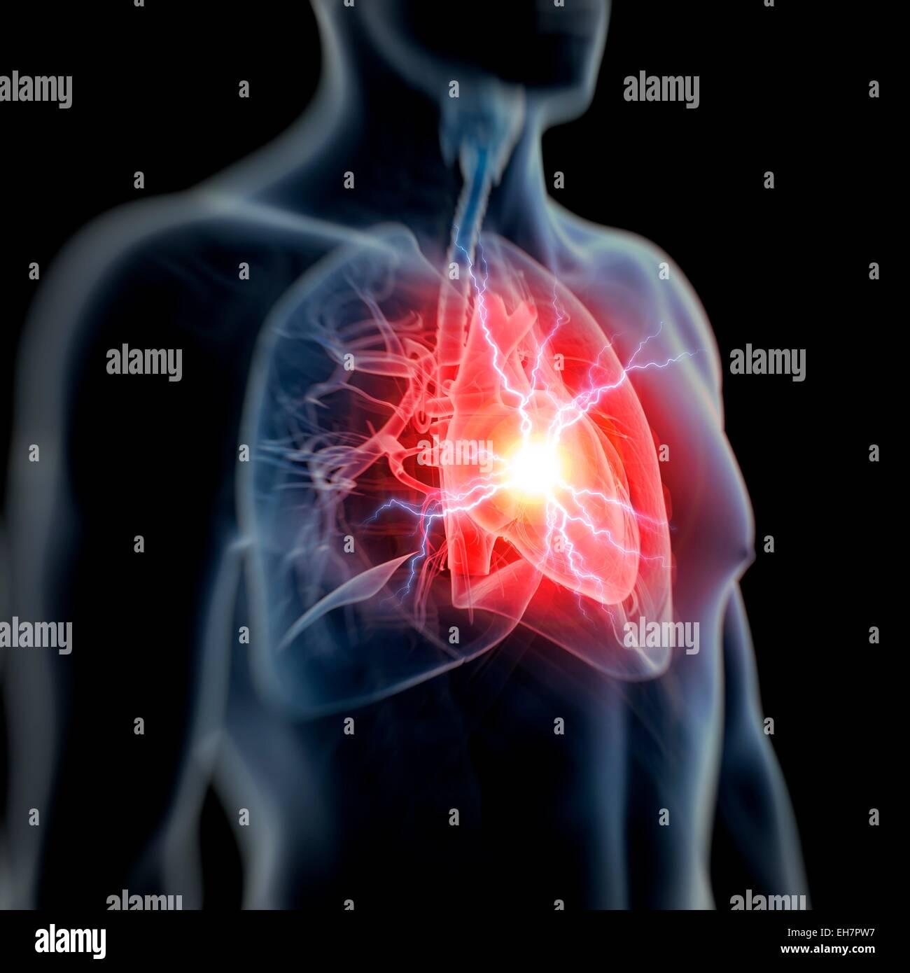 Human heart attack, illustration - Stock Image