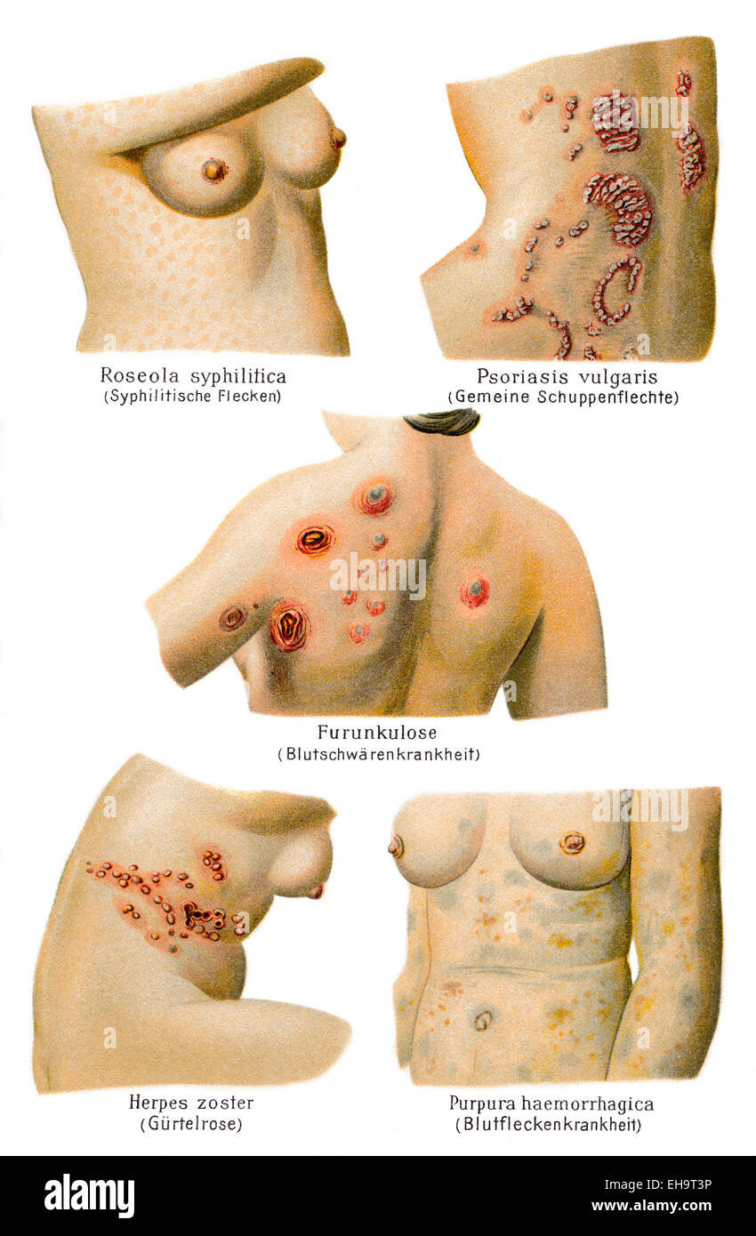 cutaneous conditions, health counselor, 19th century, - Stock Image