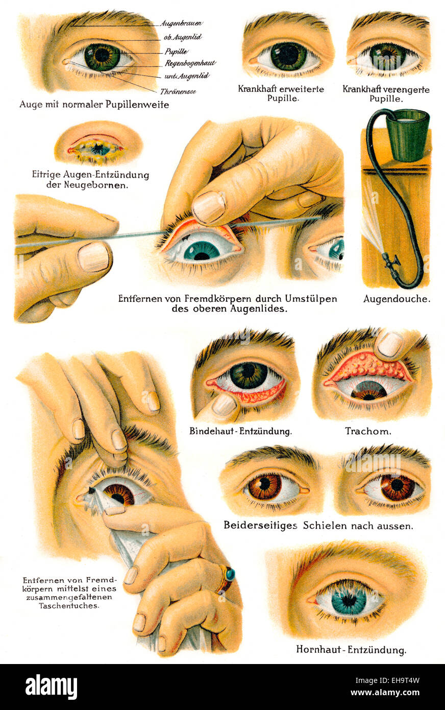various eye diseases, health counselor, 19th century, - Stock Image
