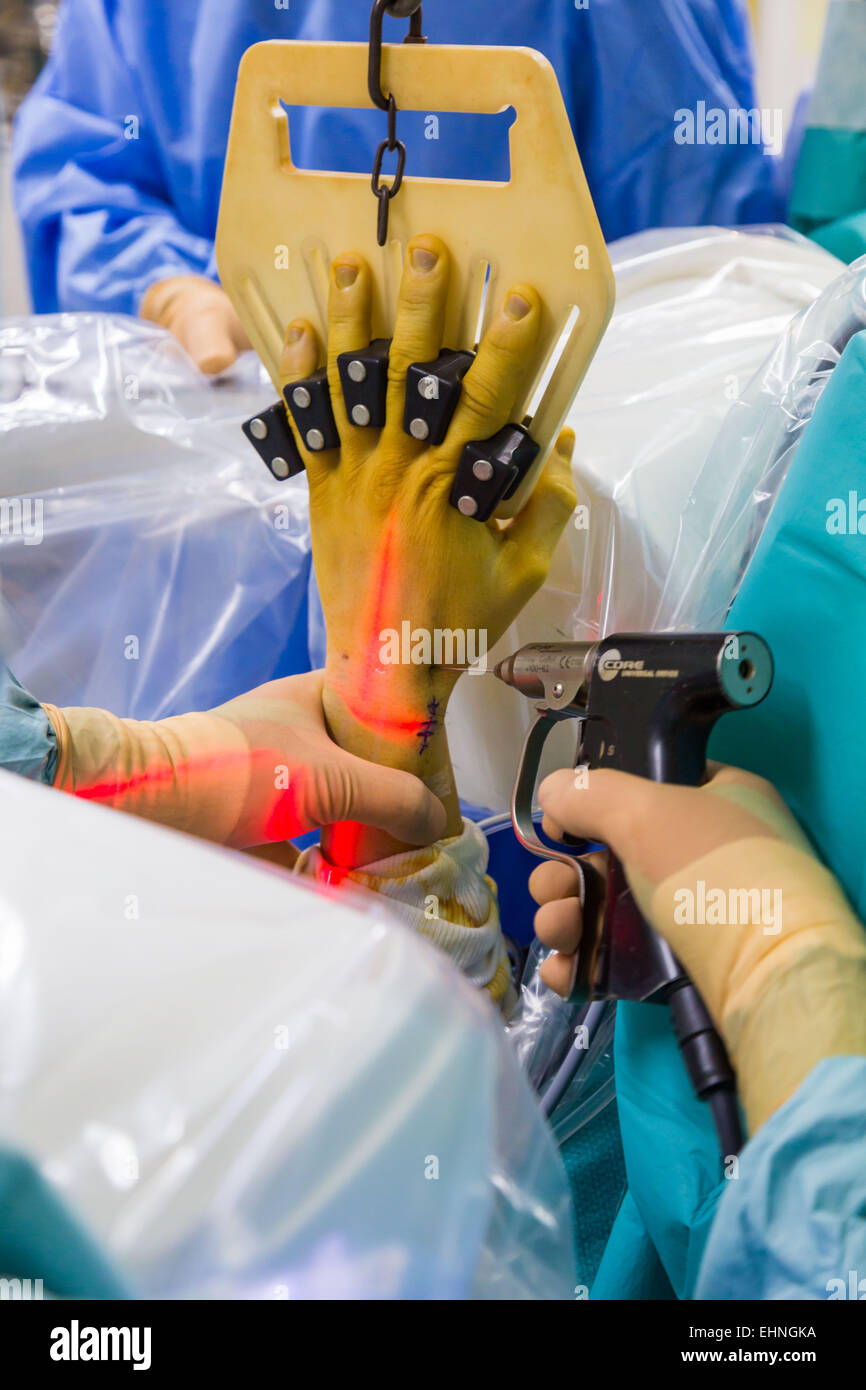 Pin placing on a broken wrist arthroscopy, Jouvenet clinic, Paris, France. - Stock Image